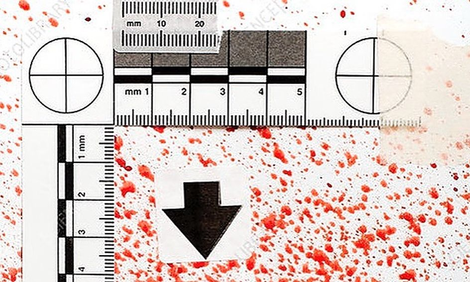 Forensic Science Blood Spatter Analysis Small Online Class For Ages 14 18 Outschool