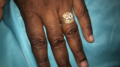 Inherited wedding ring